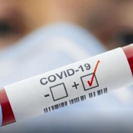 коронавірус5