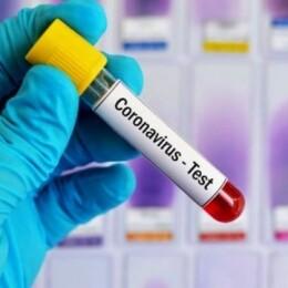 коронавірус_тест